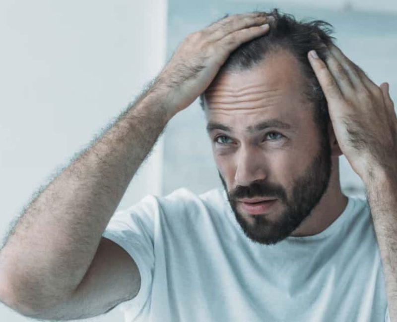 Hair-Loss-Symptoms
