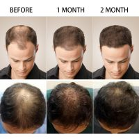 PURC-Hot-sale-Fast-Hair-Growth-Essence-Oil-Hair-Loss-Treatment-Help-for-hair-Growth-Hair-2.jpg