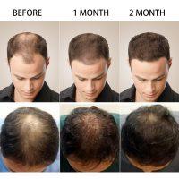 PURC-Hot-sale-Fast-Hair-Growth-Essence-Oil-Hair-Loss-Treatment-Help-for-hair-Growth-Hair-2.jpg