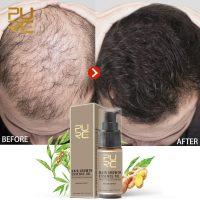 PURC-Hot-sale-Fast-Hair-Growth-Essence-Oil-Hair-Loss-Treatment-Help-for-hair-Growth-Hair.jpg